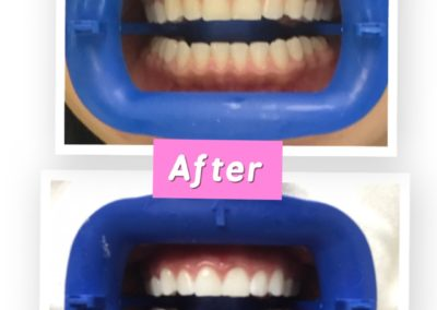 flash-smile-dental-before-and-after-teeth-whitening