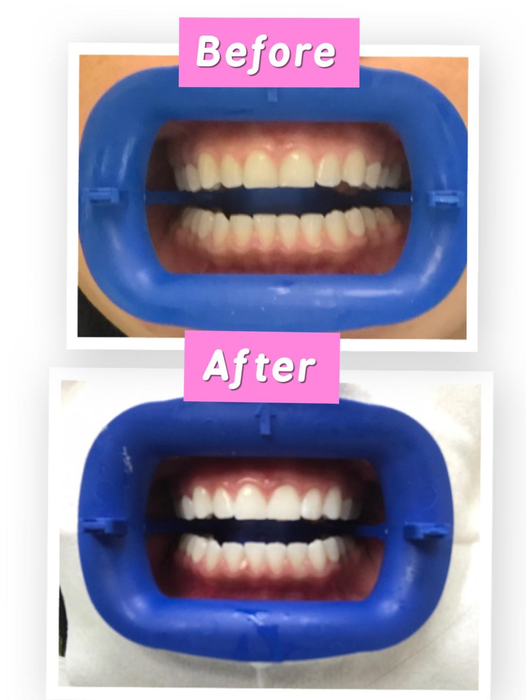 Flash Smile Dental Services in Doral, FL | Flash Smile Dental