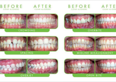 flash-smile-dental-clearcorrect-results-doral-chamber-of-commerce