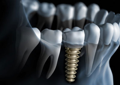 flash-smile-dental-implants-xray-doral-chamber-of-commerce