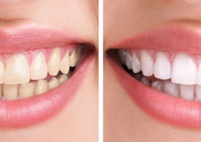 flash-smile-dental-teeth-whitening-before-and-after-doral-chamber-of-commerce